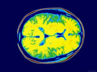 Normal MRI Head Transverse Magnetic Resonance Image Photographic Print
