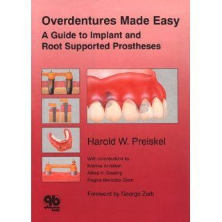 Overdentures Made Easy A Guide to Implant and Root Supported
