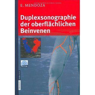 Duplexsonographie der oberflächlichen Beinvenen eBook Erika Mendoza